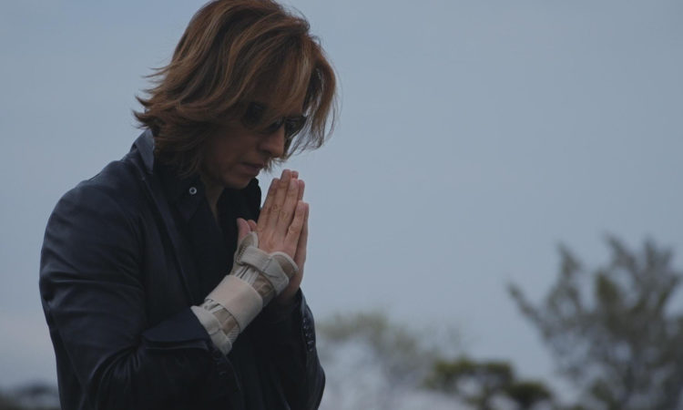 X Japan, Yoshiki recupera dall'intervento
