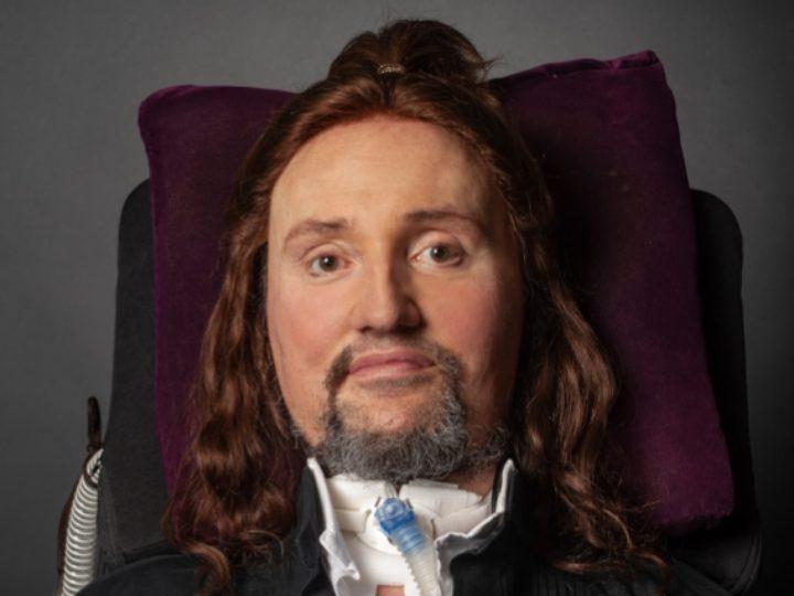 Jason Becker, in ospedale per un'infezione batterica