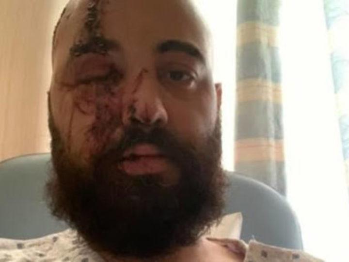 Nervecell, il batterista gravemente ferito nell'esplosione di Beirut